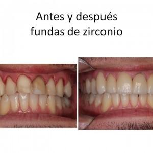 Diapositiva76